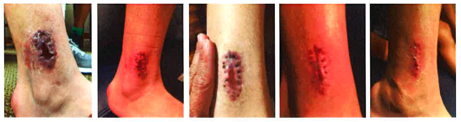 healing progress of surgical wound with Class IV laser therapy treatments